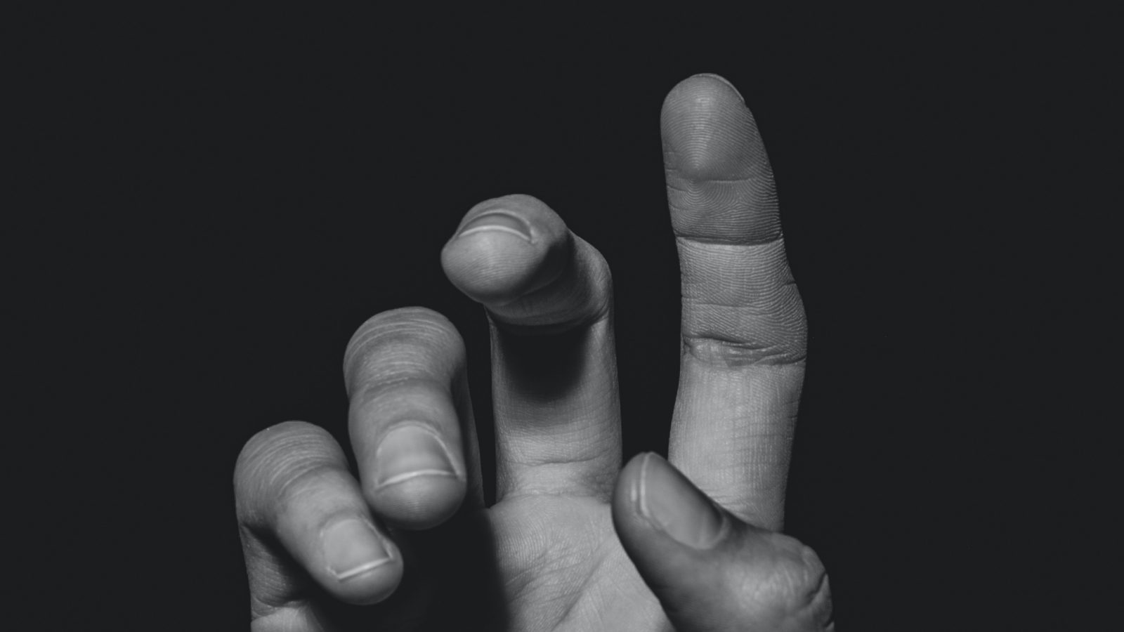 a finger that looks like it hurts